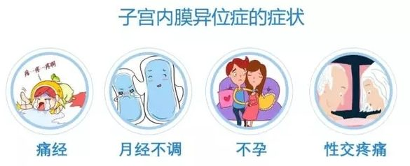 当试管婴儿遇到子宫内膜异位症