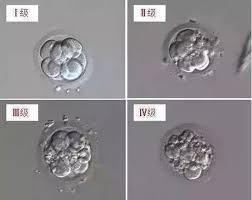 试管婴儿低评分胚胎是否应该进行囊胚培养呢?