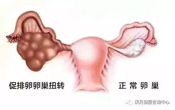 试管婴儿取卵前后易发生的卵巢扭转怎么办?