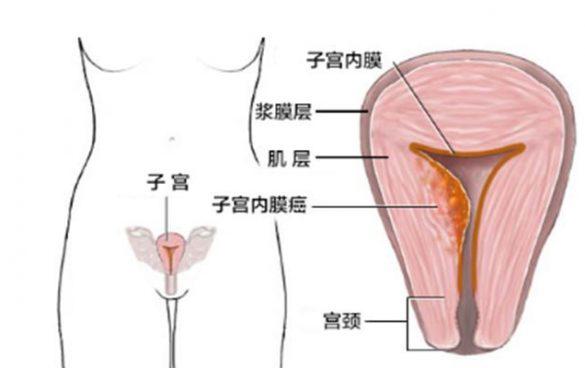 """个保养子宫内膜的方法,科学提高胚胎着床几率"""""""